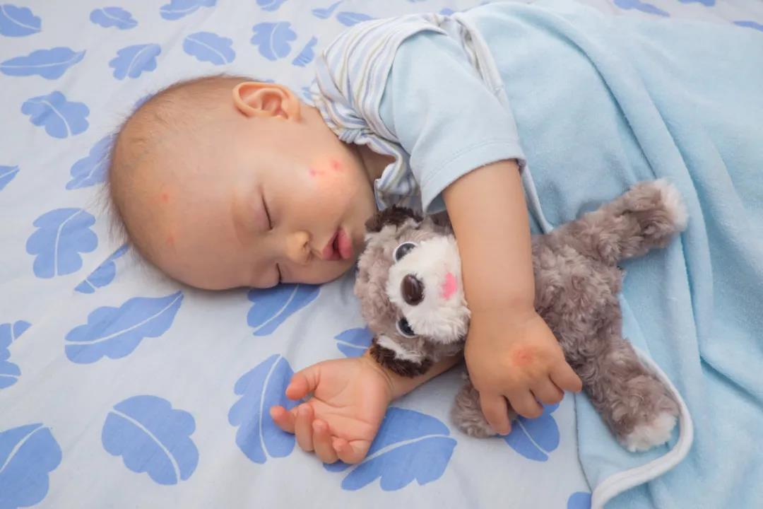 夏秋换季如何保护婴幼儿不受过敏困扰?卡赫来帮你!